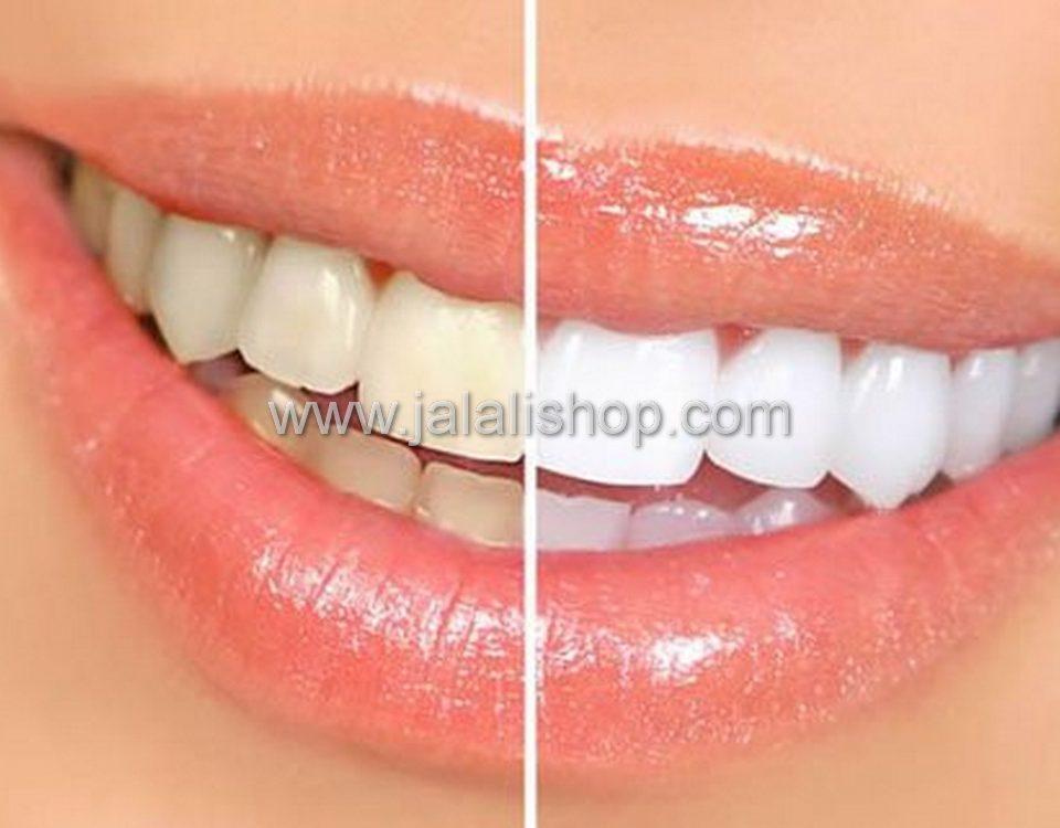 رزین دندان پزشکی